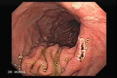 Endoscopy of Hourglass Stomach.