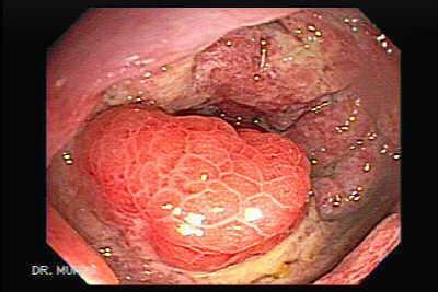 ischemic colitis -the gastrointestinal atlas, Skeleton