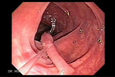 Image and video clip of a large hiperplasic polyp