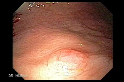 Metastatic malignant melanoma of the gastrointestinal tract.