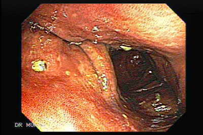 Endoscopic View of Melanosis Coli