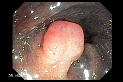 Polypectomy of sigmoid polyp