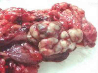 Metastases of Renal Carcinoma to Ascending Colon