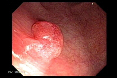 Colonoscopy of syncronic polyps and colon cancer of the transverse.
