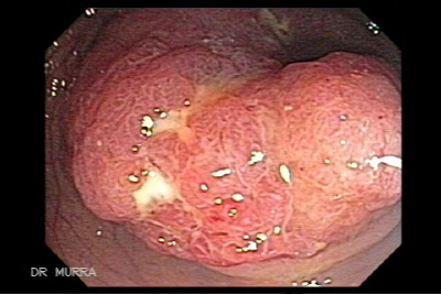Colonoscopy Adenocarcinoma of the transverse colon with synchronous polyps