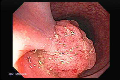 Endoscopic View of Large Colonic Polyp
