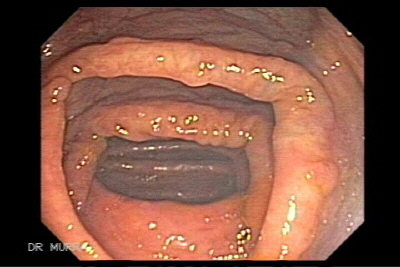 Video colonoscopy of Familial Adenomatous Polyposis