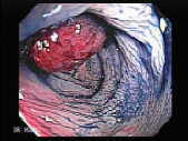 Chromoendoscopy with indigo carmine dye.  Click here to see Video clips and Image map.
