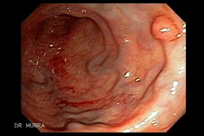 Rectal varices Adenocarcinoma colon