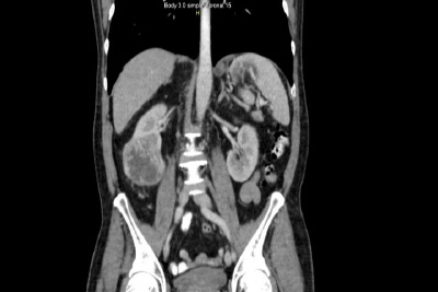 Gastric Metastasis from Renal Cell Carcinoma