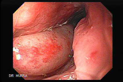 Gastroesophagic Varices.