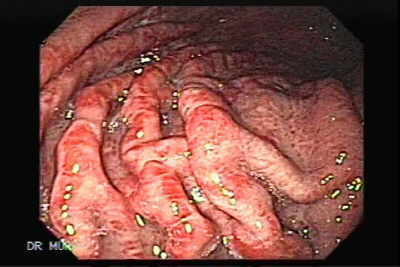 Endoscopic Picture of Acute Gastritis.