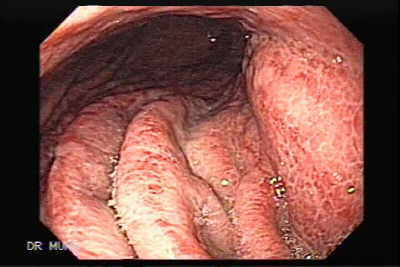 Image and video clip of Severe Acute Gastritis.