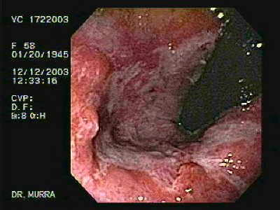 Image View of Colitis due to Shigellosis.