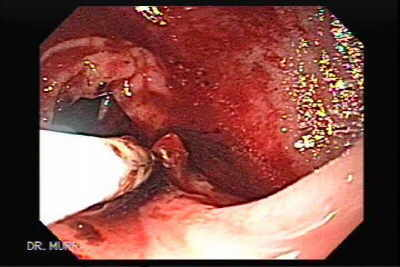 therapeutic endoscopy inyecting many doses of absolute alcohol.