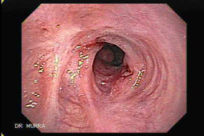 Stricture of the gastroesophageal Junction due to