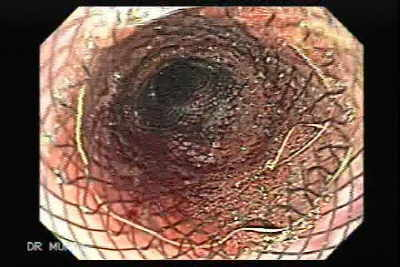 Esophageal Stent Placement