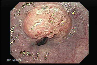 Endoscopic views of an ulcerated mid-esophageal