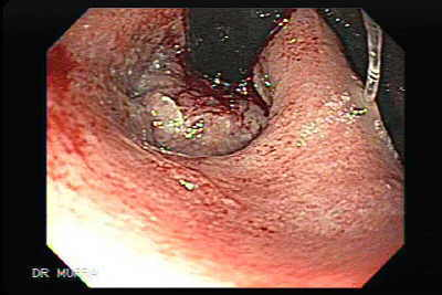 Endoscopy of Distal Esophageal Squamous Cell Carcinom