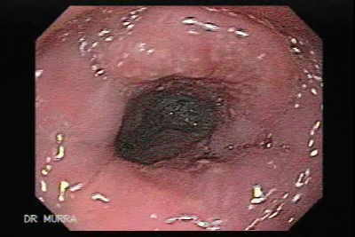 Palliation is directed at reducing esophageal obstruction sufficiently to allow oral intake
