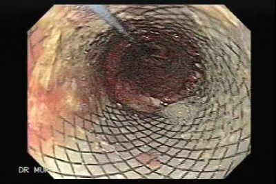 Another image and video clip of the first stent .