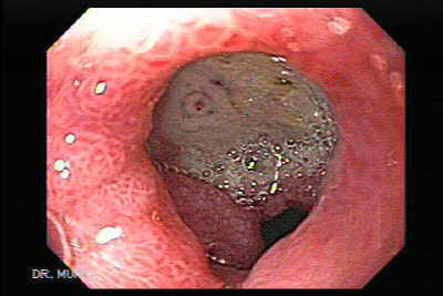 Duodenal Ulcer with Visible Vessel.