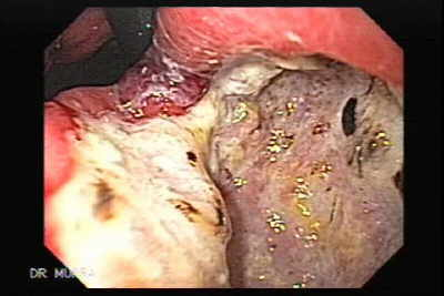Giant Gastric Ulcer