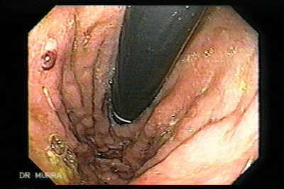Ulcerated Gastric Varix