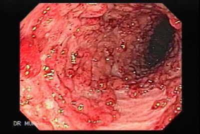 Endoscopy of Ulcerative Colitis with Pseudopolyps