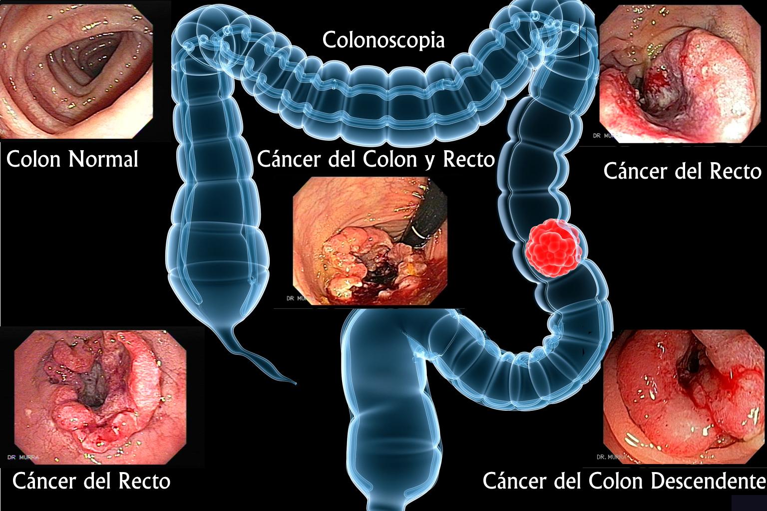 Cáncer del Colon -Gastroenterologia El Salvador - murrasaca.com