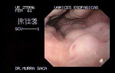 Por qué había unos asteriscos vasculares sobre la nariz