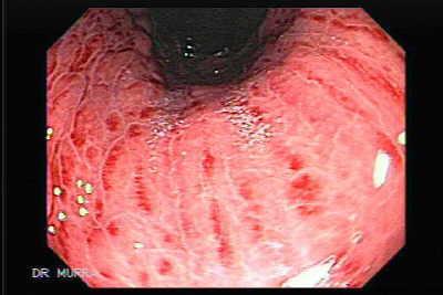 Gastritis Aguda - El Atlas Gastrointestinal ...