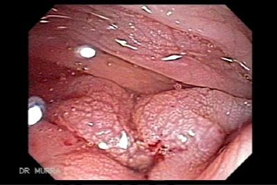rectal cancer ulcer