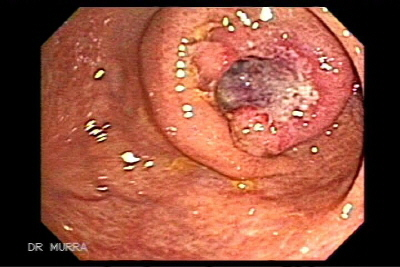 Colon And Rectal Cancer Iii The Gastrointestinalatlas Gastrointestinalatlas Com