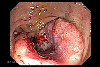Carcinoma in situ of the anus