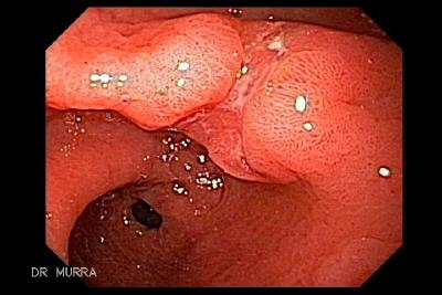 Cancer gastric biopsial, Cancerul gastric (cancerul de stomac)