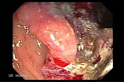 Cancerul de Colon