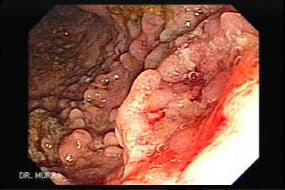 Anal sex and ulcerative colitis