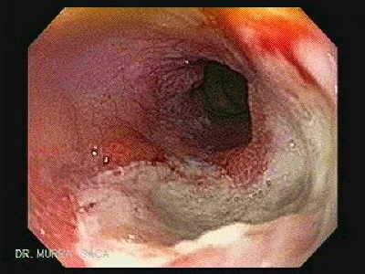 what is acid reflux esophagitis