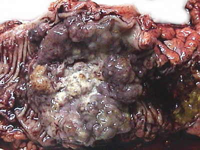 Colon And Rectal Cancer The Gastrointestinalatlas Gastrointestinalatlas Com