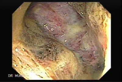 Colonic Lymphoma The Gastrointestinalatlas Gastrointestinalatlas Com