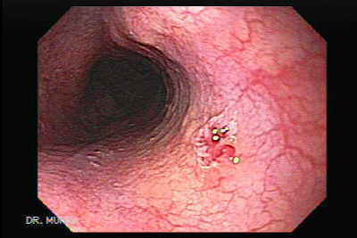 esophageal cancer hpv