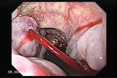 Esophageal and Gastric Varices - The Gastrointestinalatlas ...