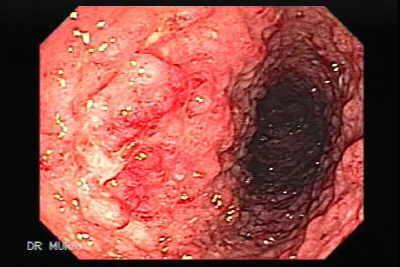 Ulcerative Colitis The Gastrointestinalatlas Gastrointestinalatlas Com