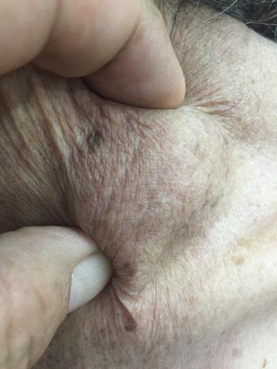 Virchow Node The Gastrointestinalatlasl Gastrointestinalatlas Com
